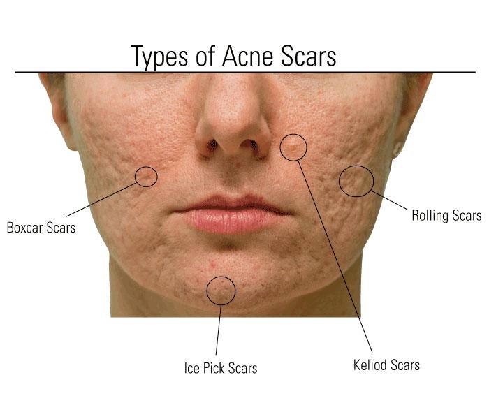 Acne Scar Treatment Dr Wisam Menesi